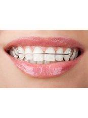Orthodontic Retainer - Dentique Calicut