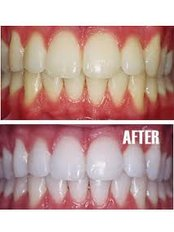Teeth Whitening - Dentique Calicut