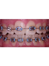 Fixed Braces - Dentique Calicut