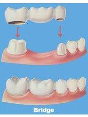 Dental Bridges - Dentique Calicut