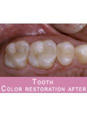 Restorative Dentist Consultation - Dentique Calicut
