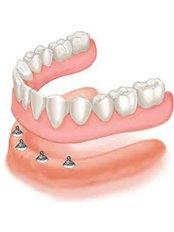 Mini Implants - Dentique Calicut