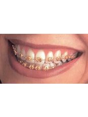 dental braces - Dentique Calicut
