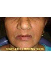 Denturist Consultation - 32 Smilez Dental Clinic & Implant Center
