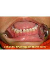 Paediatric Dentist Consultation - 32 Smilez Dental Clinic & Implant Center