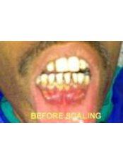 Gingival Flap Surgery - 32 Smilez Dental Clinic & Implant Center