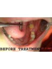 3-Unit Bridge - 32 Smilez Dental Clinic & Implant Center