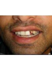 Cosmetic Dentist Consultation - 32 Smilez Dental Clinic & Implant Center