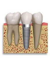 Single Implant - Avance Dental Care