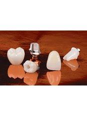 Restoration of Implants - Avance Dental Care