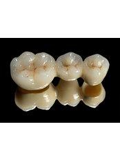 Implant Bridge - Avance Dental Care