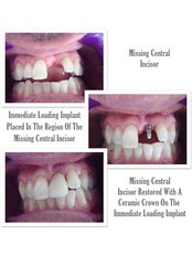 Immediate Implant Placement - Thangams Dental Implant Center