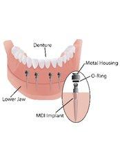 Mini Implants - Thangams Dental Implant Center