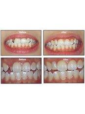 Dental Bridges - Thangams Dental Implant Center
