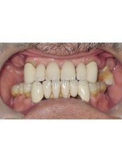 Immediate Implant Placement - Dr.Motiwala Dental Clinic and Implant Center