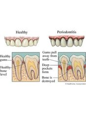 Periodontist Consultation - Ishika Dental Clinic