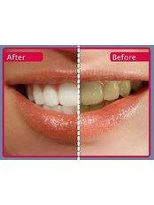 Teeth Whitening - Ishika Dental Clinic