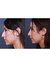 Nasal Tip Surgery - Ishika Dental Clinic