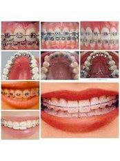 Braces - Ishika Dental Clinic