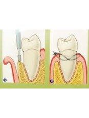 Gum Surgery - Ishika Dental Clinic