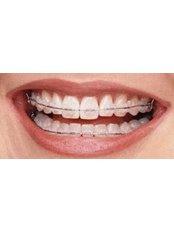 Ceramic Braces - Ishika Dental Clinic