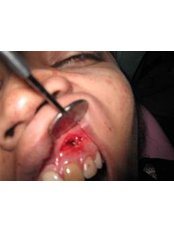 Treatment of Dental Abscess - Ishika Dental Clinic