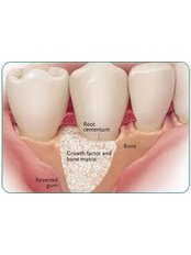 Bone Graft  - Ishika Dental Clinic