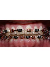 Metal Braces - Ishika Dental Clinic
