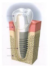 Dental Implants - Ishika Dental Clinic
