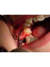 Wisdom Tooth Extraction - Ishika Dental Clinic