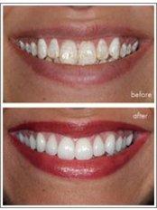 Dental Bonding - Ishika Dental Clinic
