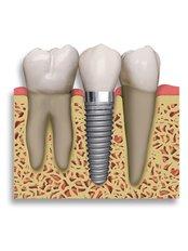 Dental Implants - International Dental Clinic Cochin