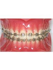 Braces - International Dental Clinic Cochin
