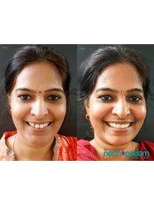 Veneers - Nechupadam Dental Clinic