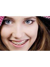 Braces - Tours2health Dental Services