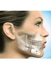 Bone Graft  - Tours2health Dental Services