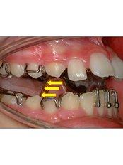 Adult Braces - Mission Smile Dental Centre