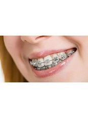 Braces - Mission Smile Dental Centre