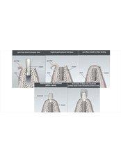 Dental Implants - Rama Dental Clinic