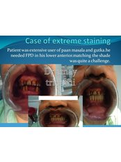 Dental Bridges - Rama Dental Clinic
