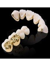 Gold Crown - Rama Dental Clinic