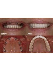Dental Implants - Thind Dental Clinic