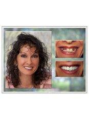 Permanent Bridge - Smile Speak Dental Clinic