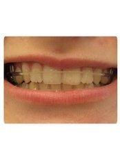 Orthodontic Retainer - Smile Speak Dental Clinic