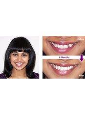 Adult Braces - Smile Speak Dental Clinic