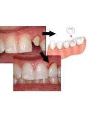 Dental Crowns - Smile Speak Dental Clinic