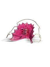 Removable Braces - Smile Speak Dental Clinic