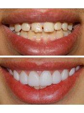 Veneers - Smile Speak Dental Clinic