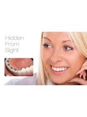 Lingual Braces - Smile Speak Dental Clinic