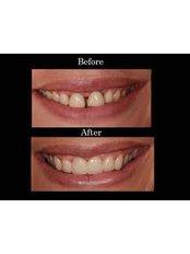 Porcelain Bridge - Smile Speak Dental Clinic